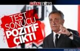 Ahmet Nur Çebi'nin korona virüs testi pozitif çıktı...