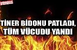 TİNER BİDONU PATLADI, TÜM VÜCUDU YANDI