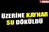 ÜZERİNE KAYNAR SU DÖKÜLDÜ