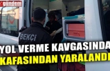 YOL VERME KAVGASINDA KAFASINDAN YARALANDI
