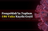 Zonguldak Geneli Covid 19 Durum Analizi Belli Oldu.