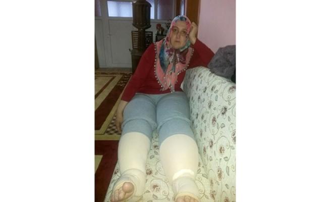 ´Fil hastalığı´na yakalanan kadın ameliyat olabilmesi için yardım bekliyor