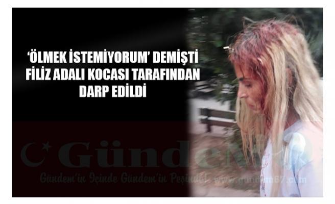 'ÖLMEK İSTEMİYORUM' DEMİŞTİ FİLİZ ADALI KOCASI TARAFINDAN DARP EDİLDİ