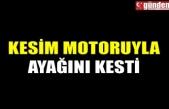 KESİM MOTORUYLA AYAĞINI KESTİ