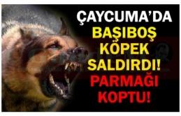 ÇAYCUMA'DA BAŞIBOŞ KÖPEK SALDIRDI! PARMAĞI  KOPTU!