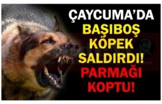 ÇAYCUMA'DA BAŞIBOŞ KÖPEK SALDIRDI! PARMAĞI...