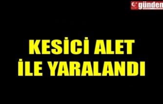KESİCİ ALET İLE YARALANDI